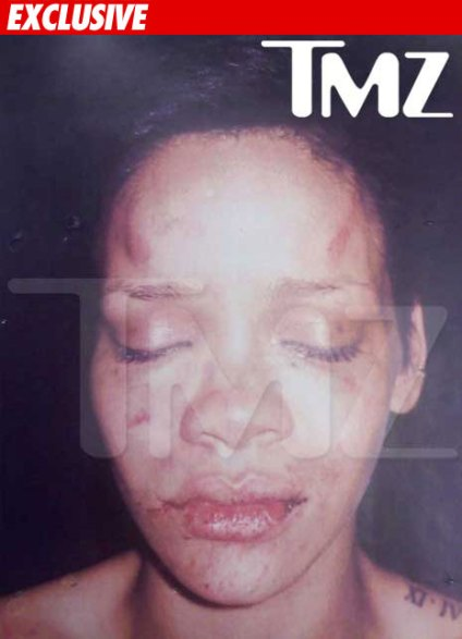 tmz-rihanna_photo_beating1